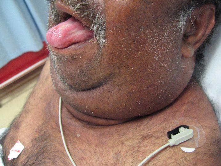 Причини та симптоми ангіни Людвіга