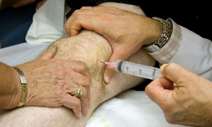 Контрактура колінного суглоба: лікування