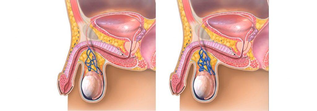 Операції з лікування варикоцеле
