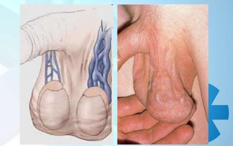 Схематичне зображення і фото варикоцеле
