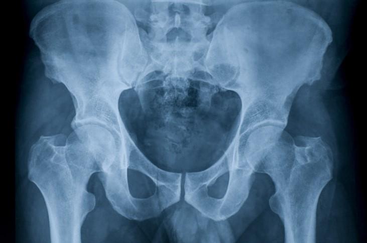 Рентген тазостегнового суглоба у дорослих