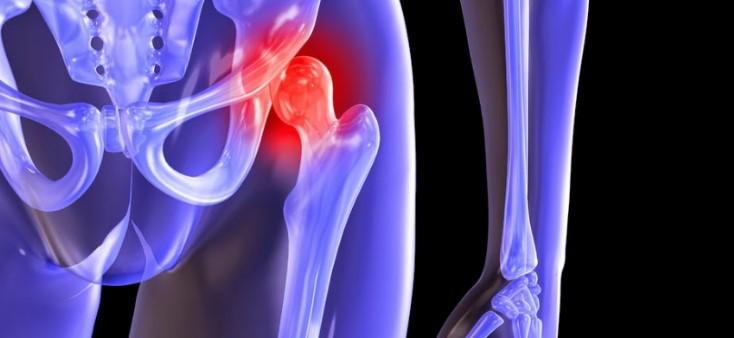 Симптоми і лікування артриту