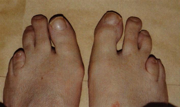 Хвороба Рефсума: симптоми