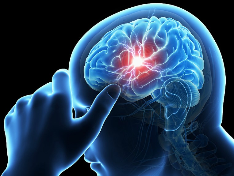 Хвороба Александера – діагностика та лікування