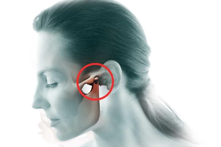 Артроз скронево-нижньощелепного суглоба