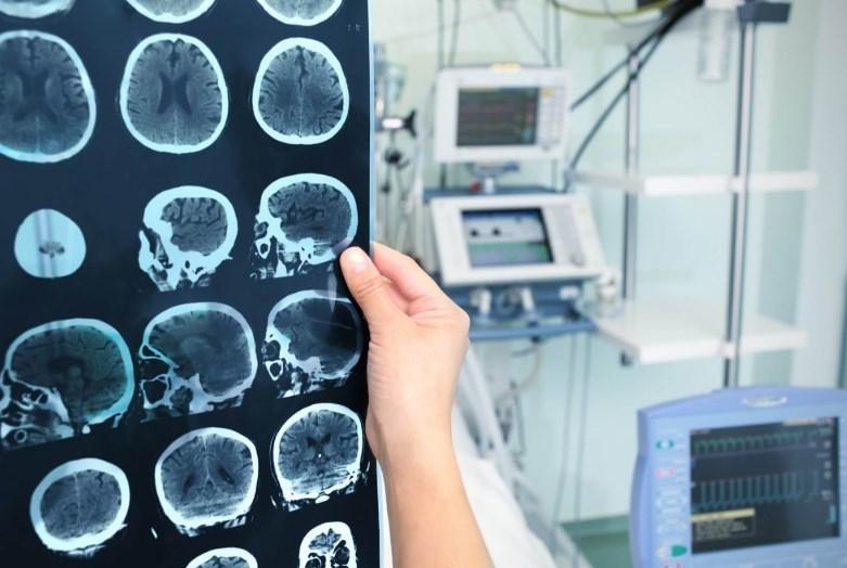 Хвороба Паркінсона: чим правильно лікувати?