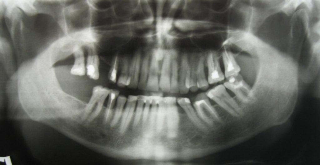 Рентгенівський знімок артрозу скронево-нижньощелепного суглоба