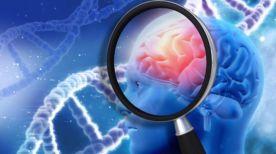 Ознаки хвороби Альцгеймера