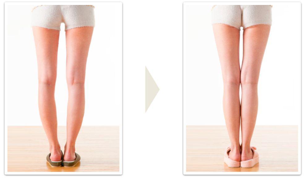 Вправи для О-образних і Х-образних ніг