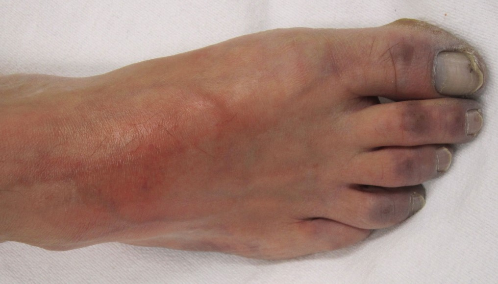 Ілеофеморальний тромбоз - симптоми