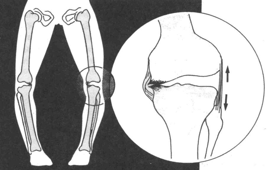 Справжня О-образна кривизна ніг