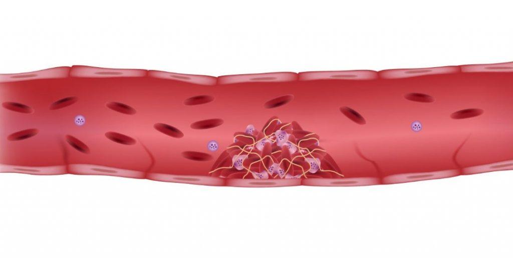 Тромбоз - причини, симптоми, види