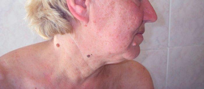 Множинні кератоми шкіри