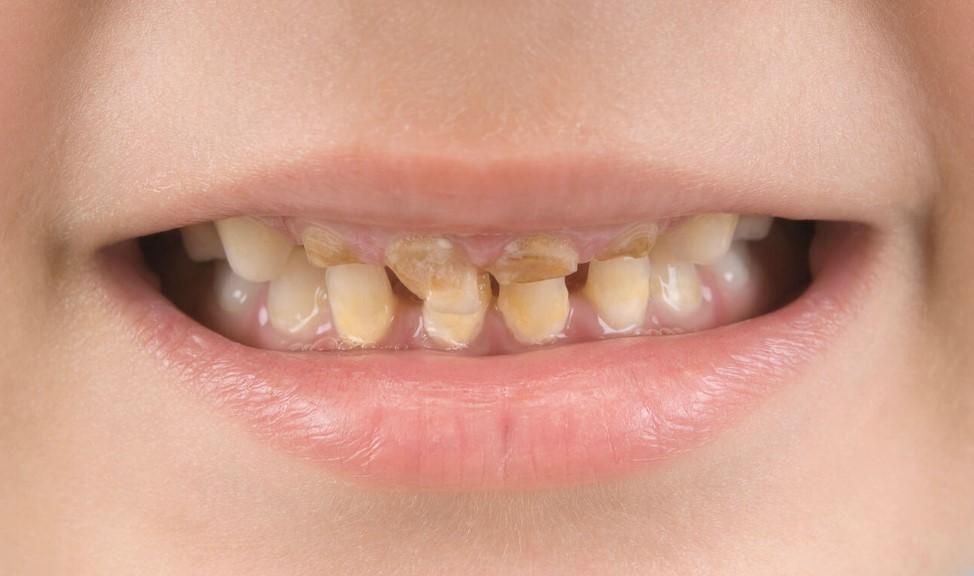 Пляшковий карієс у дітей: причини