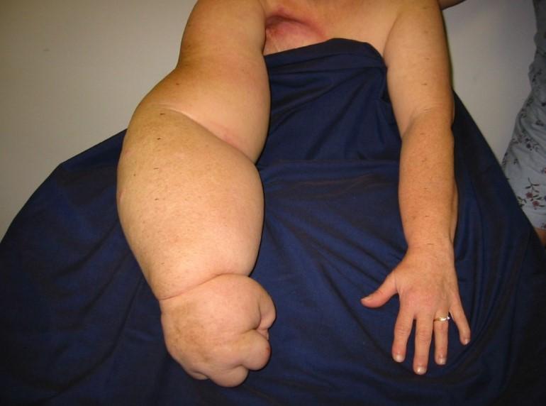 Лімфостаз руки: лікування сучасними способами