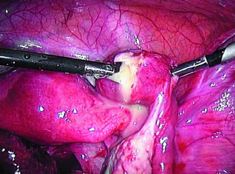 Лапароскопічні операції на придатках матки