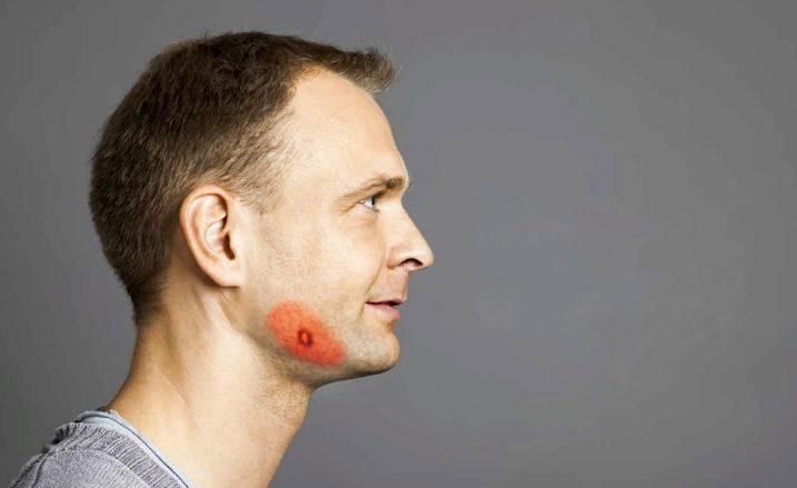 Інфекційне захворювання – актиномікоз