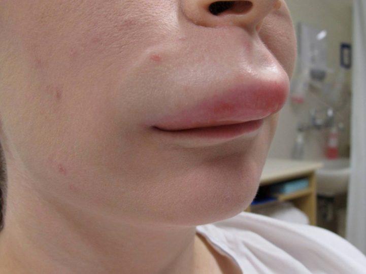 Набряк Квінке: симптоми і лікування