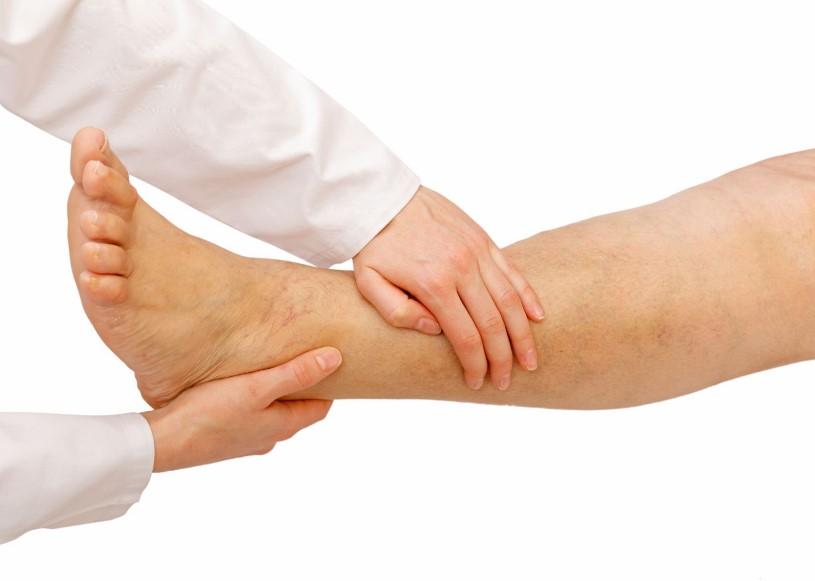 Що таке лімфостаз гомілки, причини захворювання
