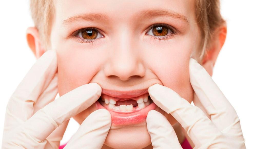 Карієс молочних зубів: причини