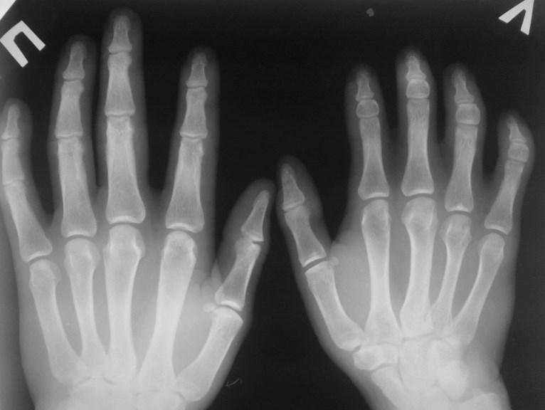 Брахидактилия. Брахімезофалангія V пальця