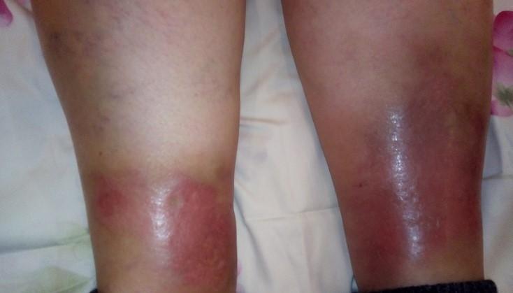 Алергічний васкуліт - типи