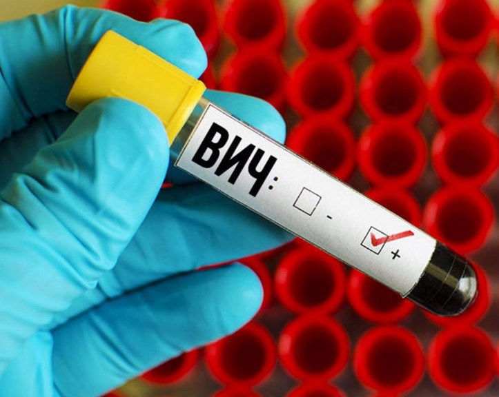 ВІЛ-інфекція: перші ознаки захворювання