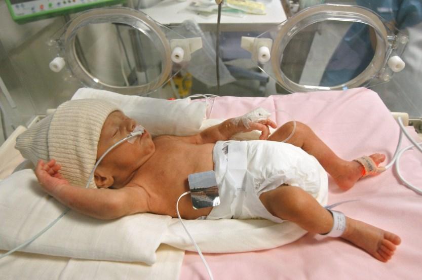 Бронхолегенева дисплазія у недоношених новонароджених