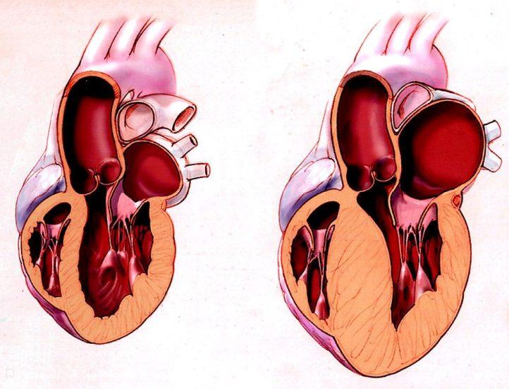 Алкогольна кардіоміопатія: причини та симптоми
