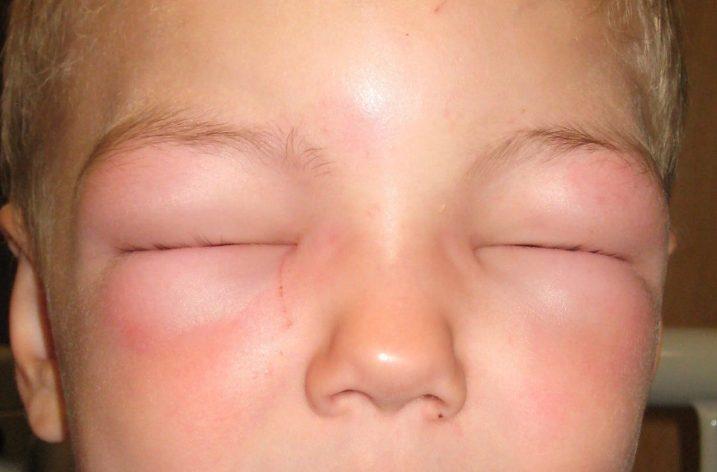 Спадковий ангіоневротичний набряк: лікування