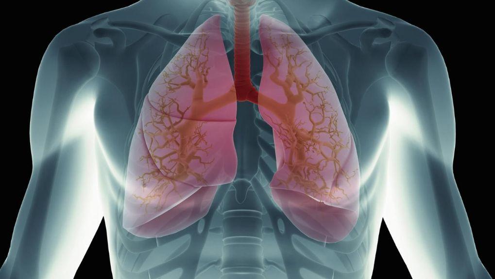 Застійна пневмонія у лежачих хворих