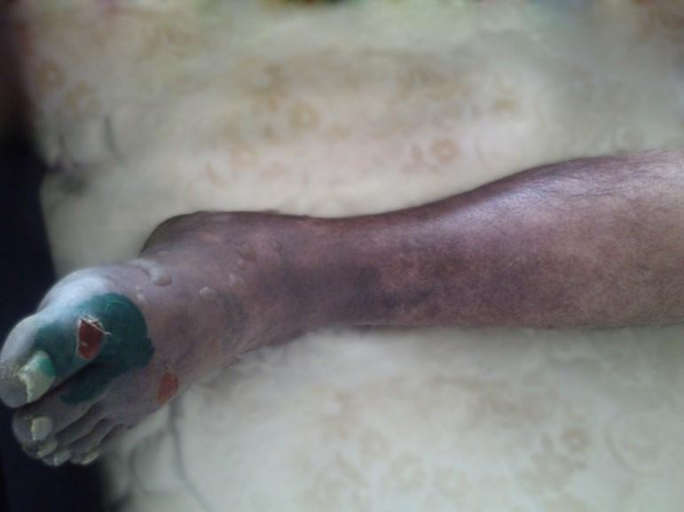 Тромбоз глибоких вен нижніх кінцівок