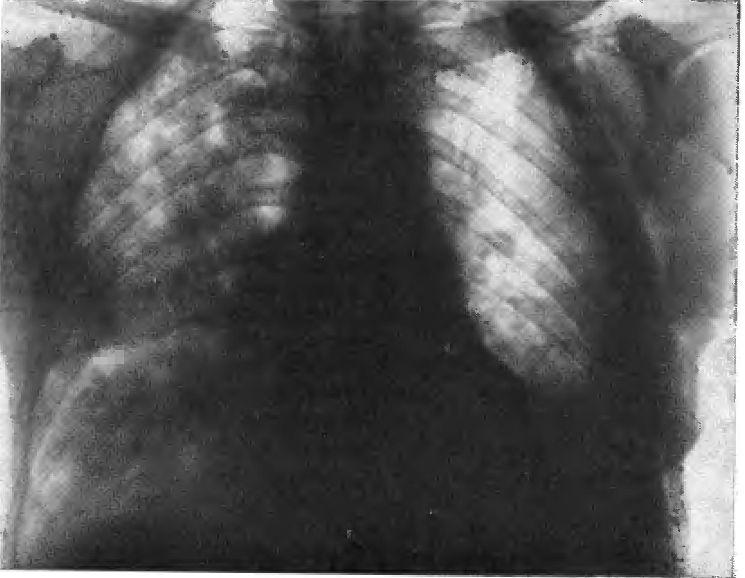 Вторинні пневмонії, застійна пневмонія