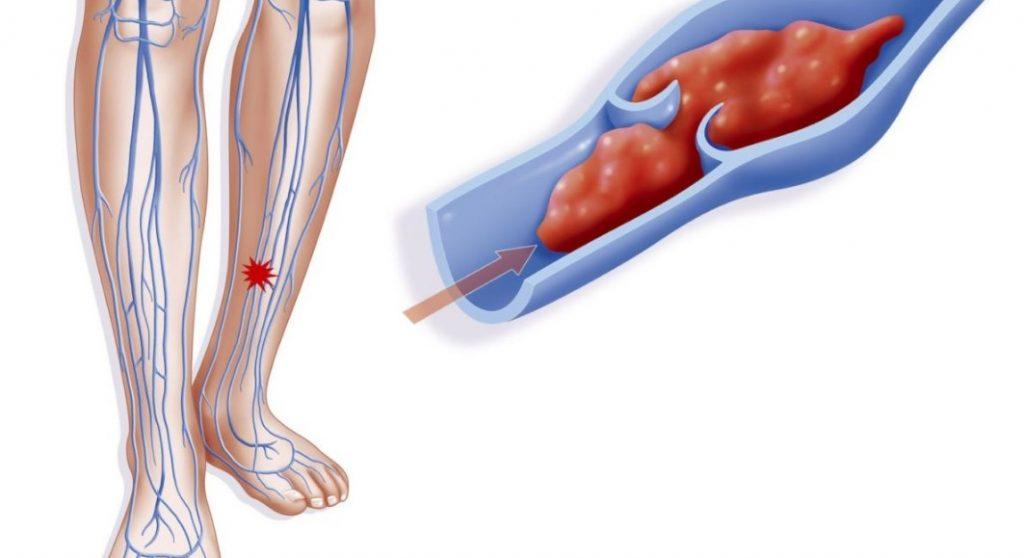 Тромбоз глибоких вен: причини, симптоми