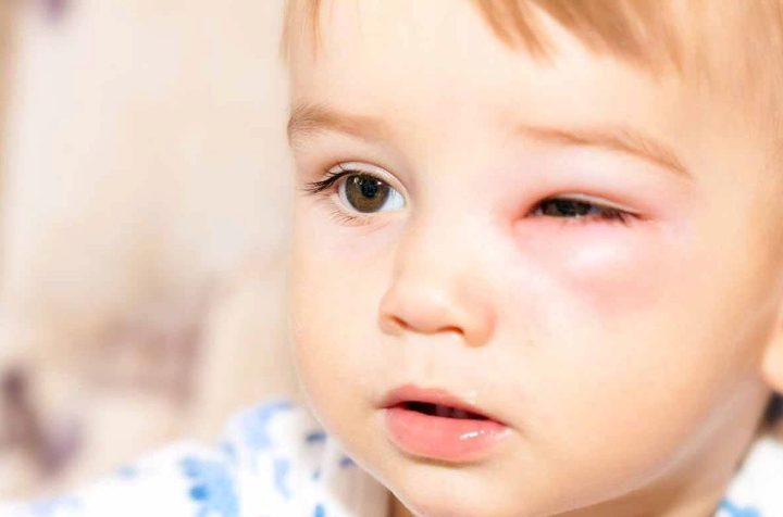 Набряк Квінке у дітей: причини виникнення