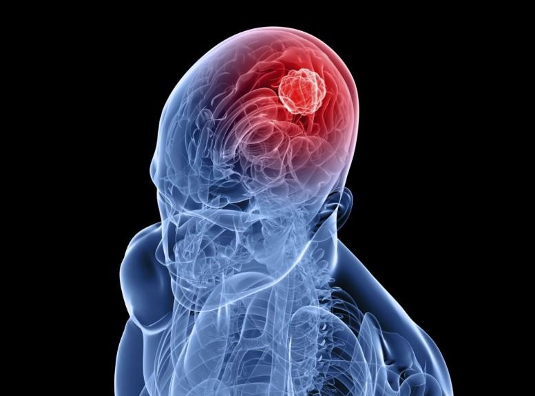 Арахноідит – аутоімунне захворювання