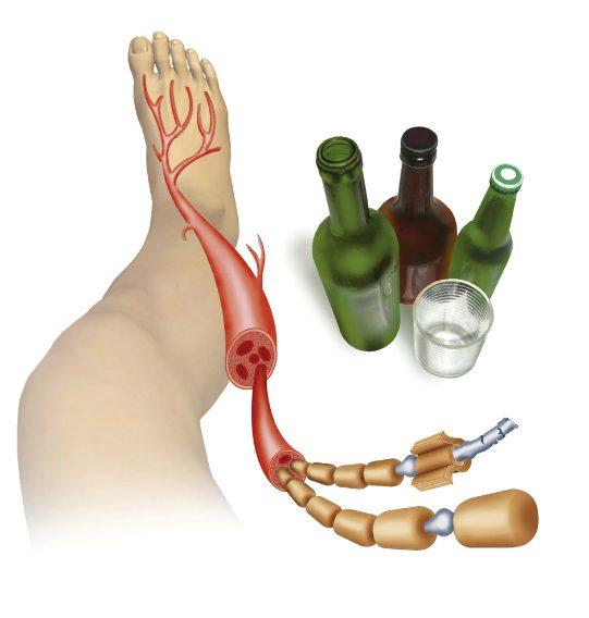 Причини алкогольної поліневропатії