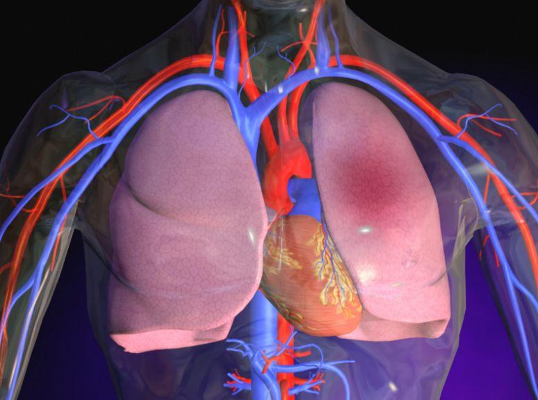 Набряк легень при пневмонії симптоми