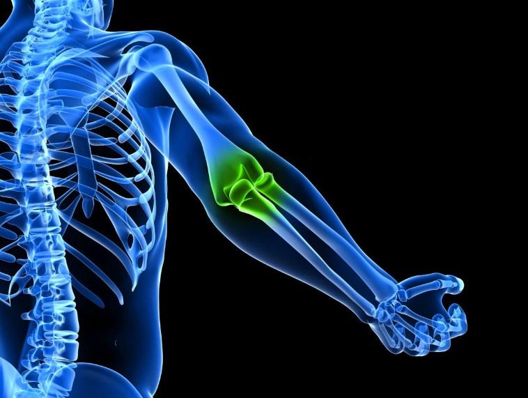 Природні засоби, які усувають бурсит ліктьового суглоба