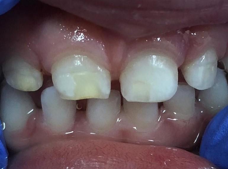 Гіпоплазія емалі зубів: способи лікування