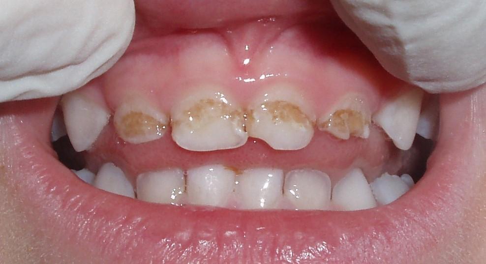 Гіпоплазія емалі зубів у дітей і дорослих