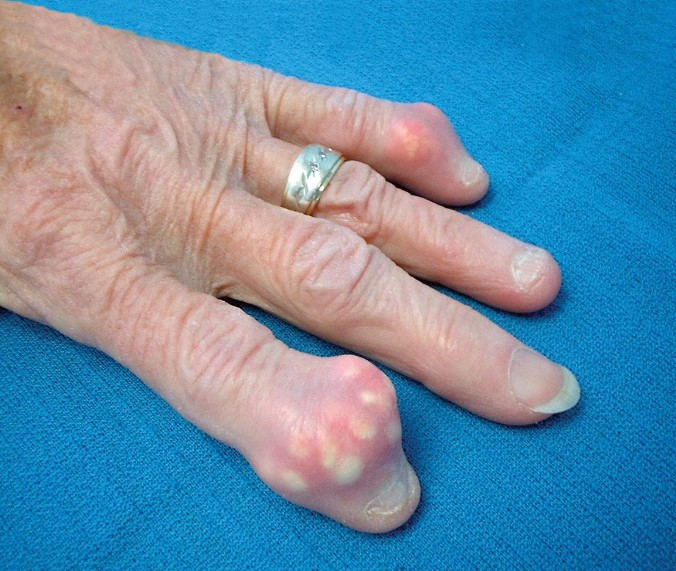 Подагра - симптоми, причини