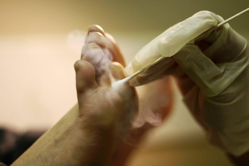 Як лікувати бородавки