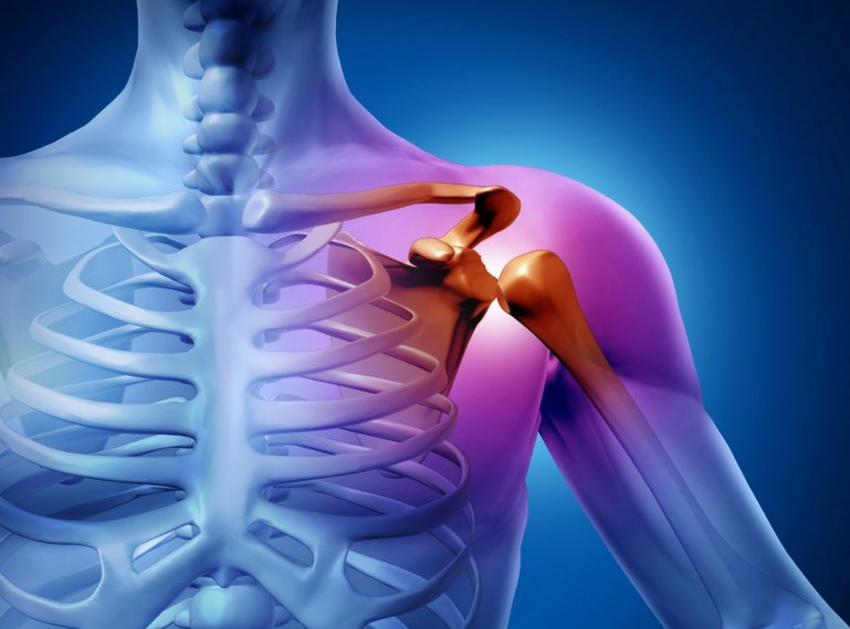 Бурсит плечового суглоба: запалення суглобової рідини