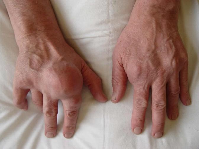 Ознаки хвороби подагра