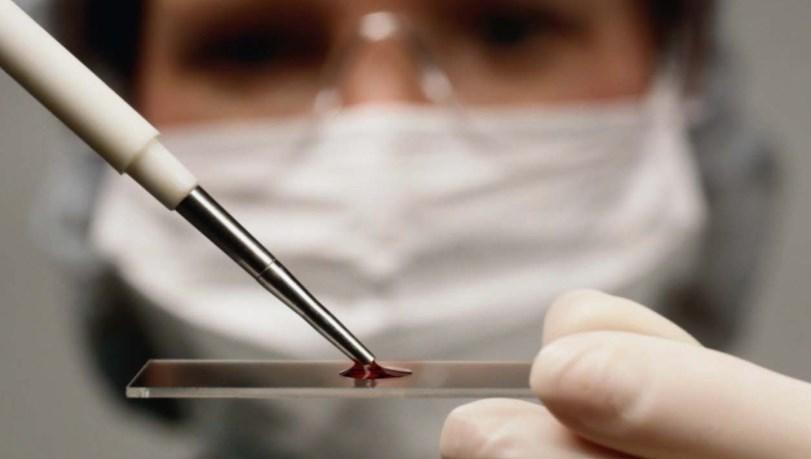 Хвороба Віллебранда - причини, симптоми, діагностика