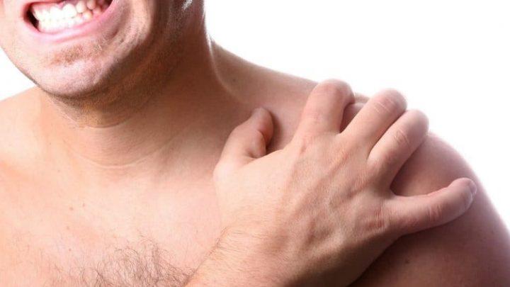 Бурсит в області плечового суглоба