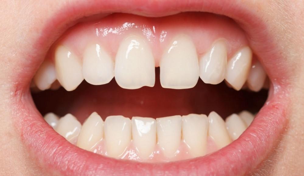 Діастеми зубів: причини