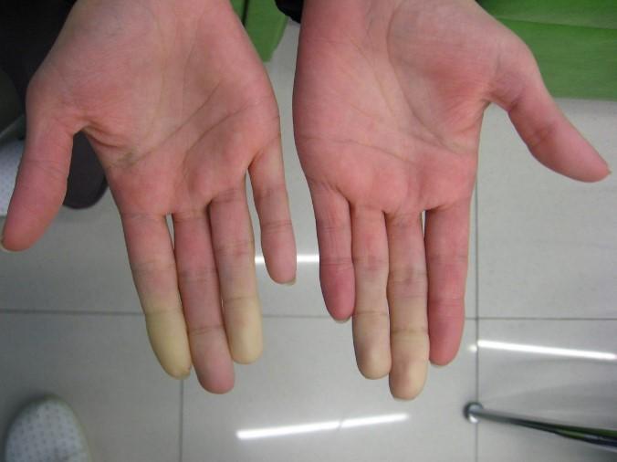 Хвороба Рейно: на що натякають холодні руки