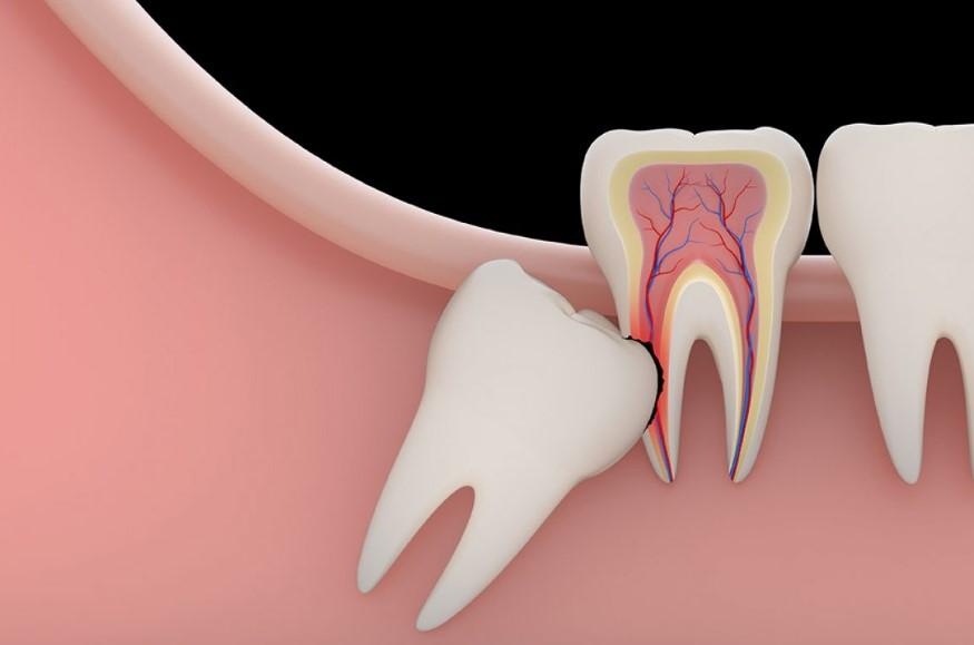 Дістопірованний зуб мудрості - симптоми